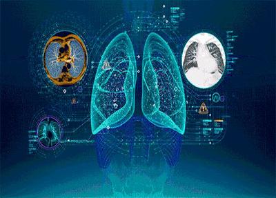 医学影像技术设备